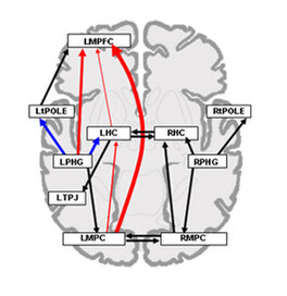 In left temporal lobe epilepsy, connections by-pass of the damaged hippocampus during AM retrieval (Addis et al., 2007, Brain)